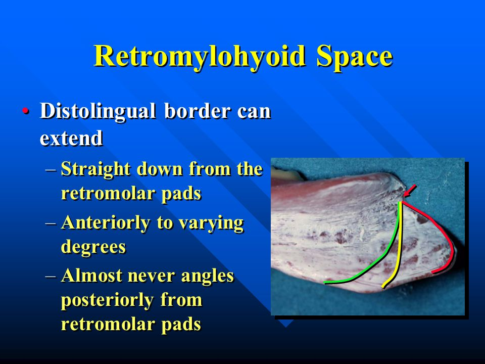 Retromylohyoid Space Distolingual border can extend –Straight down from the retromolar pads –Anteriorly to varying degrees –Almost never angles posteriorly from retromolar pads Distolingual border can extend –Straight down from the retromolar pads –Anteriorly to varying degrees –Almost never angles posteriorly from retromolar pads