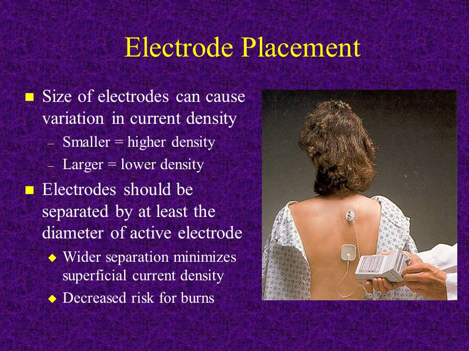 Electrode Placement n Size of electrodes can cause variation in current density – Smaller = higher density – Larger = lower density n Electrodes should be separated by at least the diameter of active electrode  Wider separation minimizes superficial current density  Decreased risk for burns
