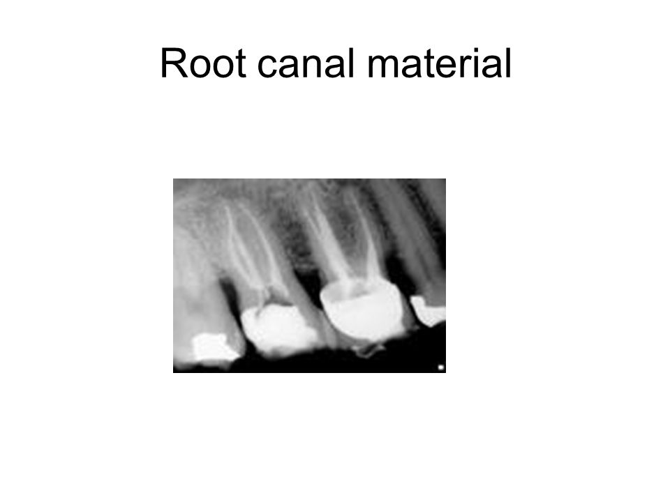 Root canal material