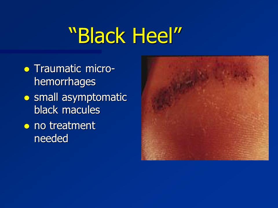 """Black Heel"" l Traumatic micro- hemorrhages l small asymptomatic black macules l no treatment needed"