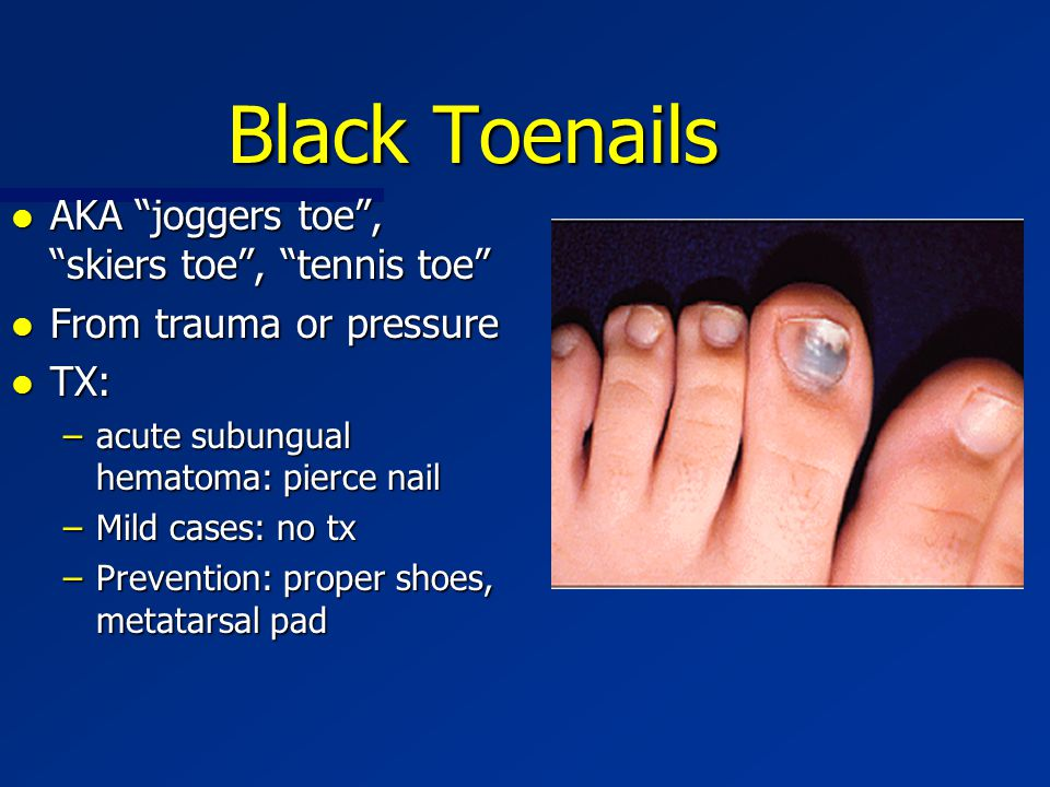 "Black Toenails l AKA ""joggers toe"", ""skiers toe"", ""tennis toe"" l From trauma or pressure l TX: –acute subungual hematoma: pierce nail –Mild cases: no"