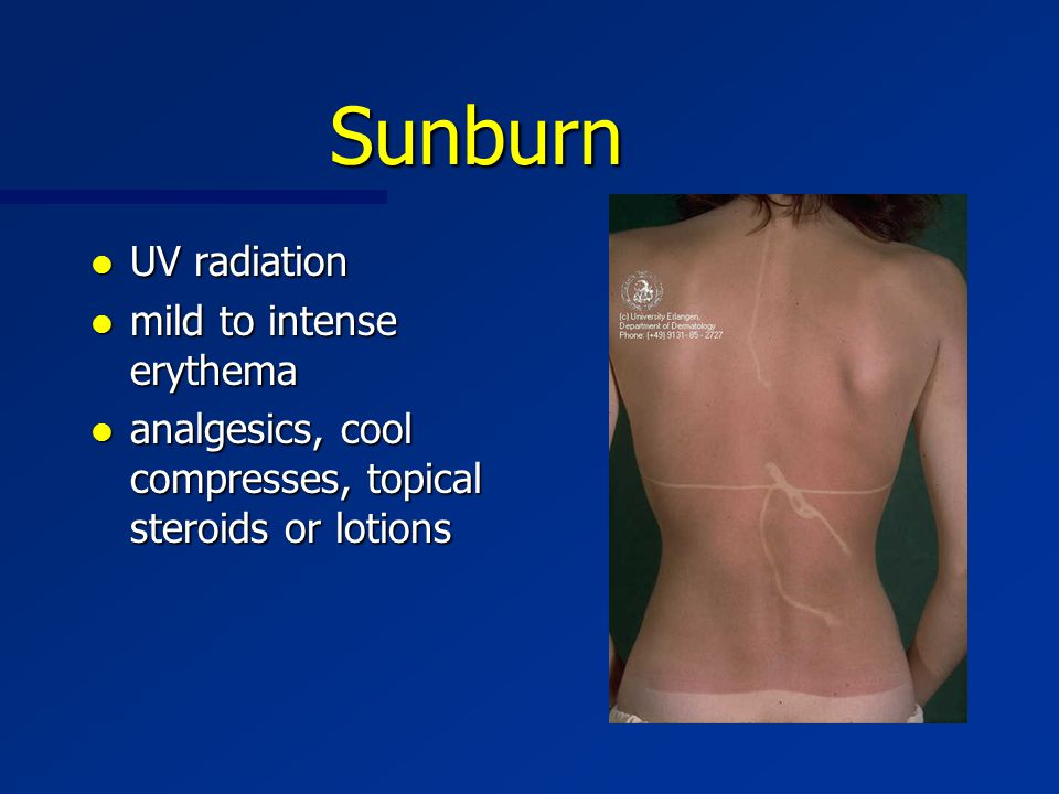 Sunburn l UV radiation l mild to intense erythema l analgesics, cool compresses, topical steroids or lotions