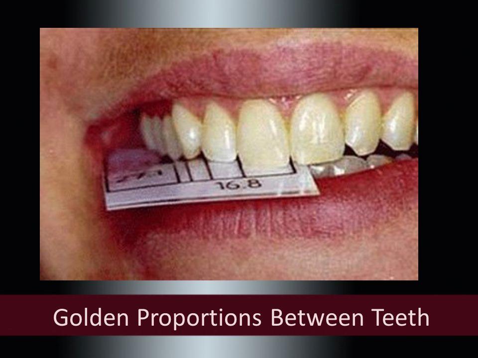 Golden Proportions Between Teeth
