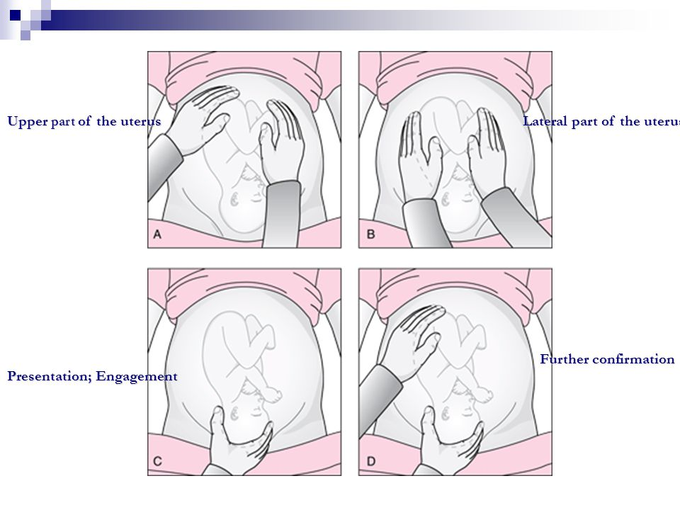 Upper part of the uterus Lateral part of the uterus Presentation; Engagement Further confirmation