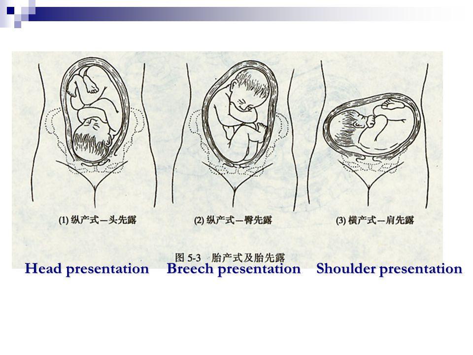 Head presentation Breech presentation Shoulder presentation