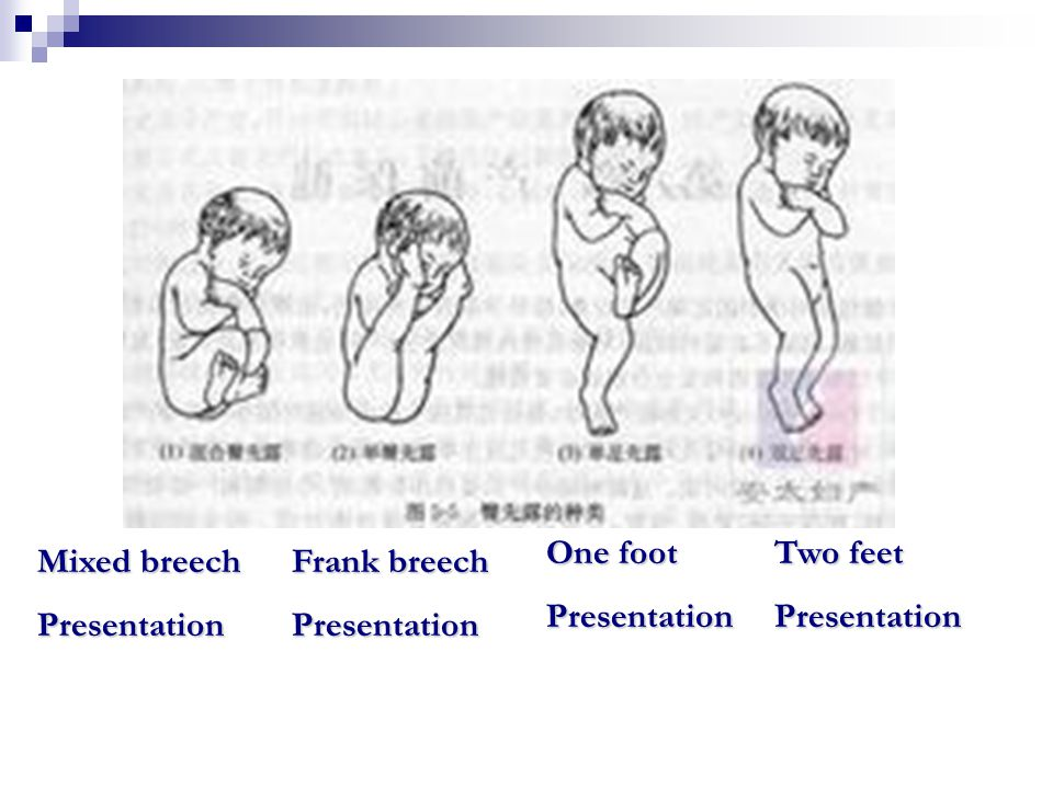 Fetal position Fetal position Fetal position: the relationship of some guiding point of fetal presentation to a fined area of the maternal pelvis.