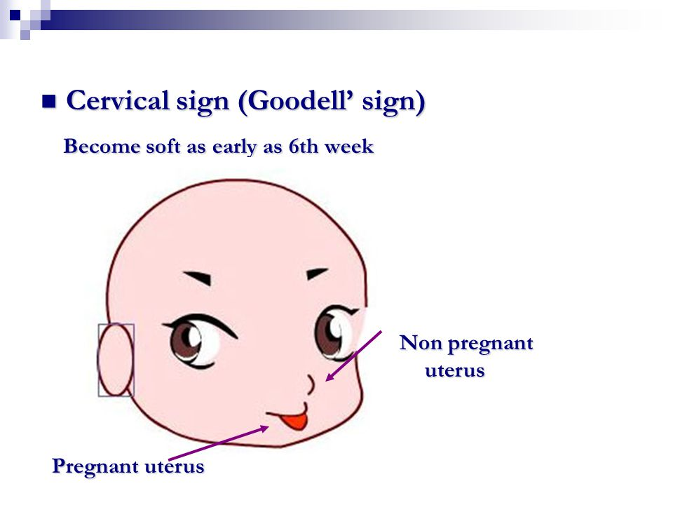 Cervical sign (Goodell' sign) Cervical sign (Goodell' sign) Become soft as early as 6th week Become soft as early as 6th week Non pregnant uterus Preg