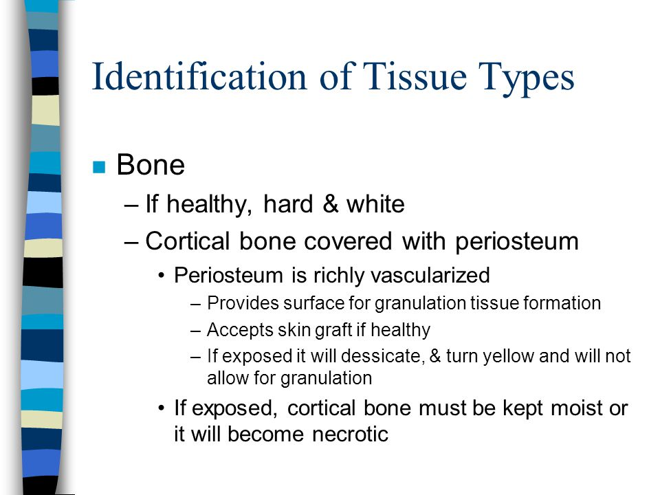 Identification of Tissue Types n Bone –If healthy, hard & white –Cortical bone covered with periosteum Periosteum is richly vascularized –Provides sur
