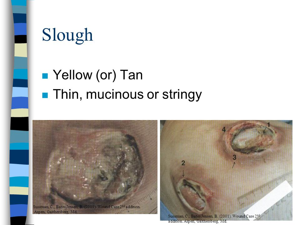 Contraindications to Sharp Debridement n When area of debridement cannot be adequately visualized (tunneling or undermining) n When material to be debrided cannot be identified n When clinician is out of her or his comfort zone n When competency has not been met n Sharp debridement should not be performed on uninfected ischemic ulcers with low ABI n Only physicians should sharp debride hypergranulated tissue