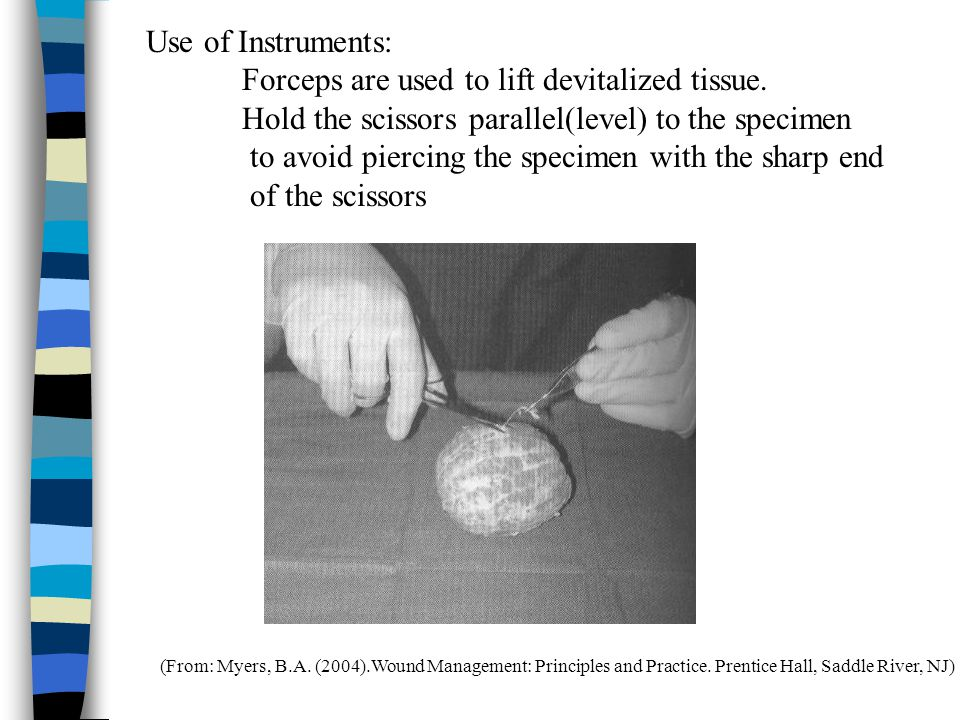 (From: Myers, B.A. (2004).Wound Management: Principles and Practice. Prentice Hall, Saddle River, NJ) Use of Instruments: Forceps are used to lift dev