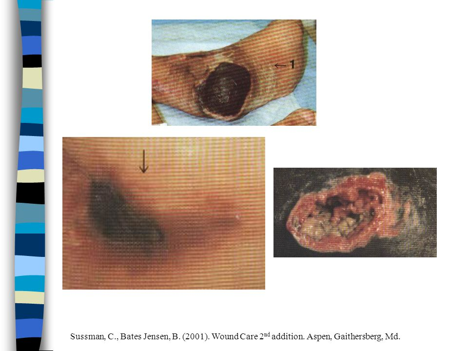Sussman, C., Bates Jensen, B. (2001). Wound Care 2 nd addition. Aspen, Gaithersberg, Md.
