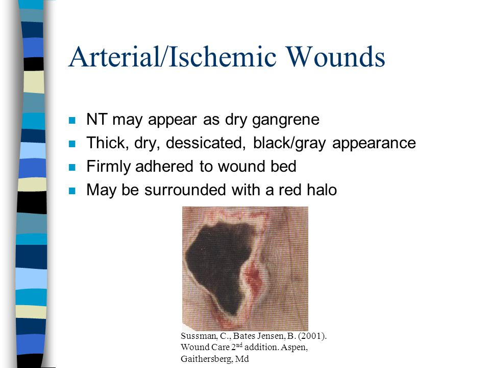 Red Yellow Black Color Code n Red –Pale pink to beefy red, granulation tissue Goals: Protect wound, Maintain warm moist environment, Protect periwound n Yellow –Moist Yellow Slough, may vary in adherence Goals: Debride necrotic tissue, Absorb drainage, Protect Peri-wound n Black –Thick, Black, adherent eschar Goals: Debride necrotic tissue Cuzzell, J.Z.