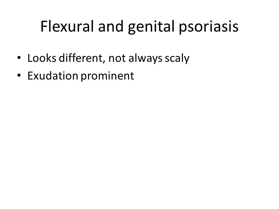 Flexural and genital psoriasis Looks different, not always scaly Exudation prominent