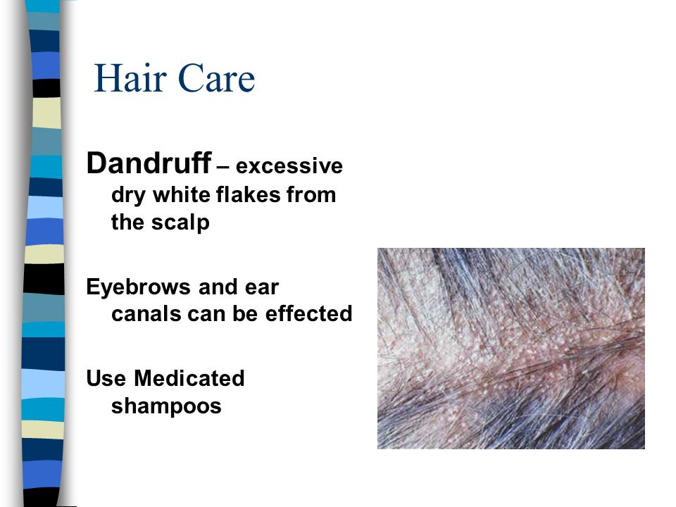 Hair Care Dandruff – excessive dry white flakes from the scalp Eyebrows and ear canals can be effected Use Medicated shampoos