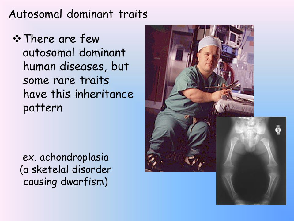 Autosomal dominant traits  There are few autosomal dominant human diseases, but some rare traits have this inheritance pattern ex.