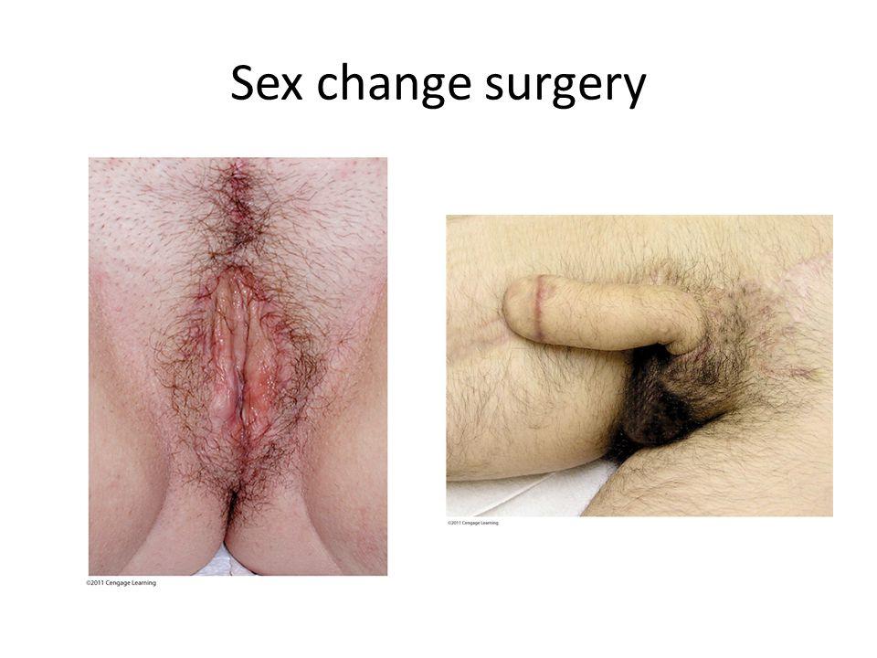 Sex change surgery