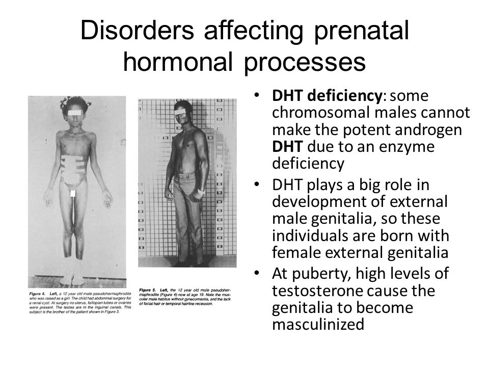 Disorders affecting prenatal hormonal processes DHT deficiency: some chromosomal males cannot make the potent androgen DHT due to an enzyme deficiency DHT plays a big role in development of external male genitalia, so these individuals are born with female external genitalia At puberty, high levels of testosterone cause the genitalia to become masculinized