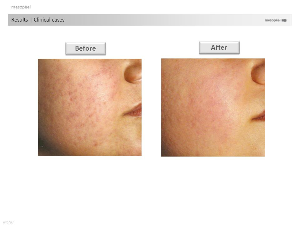 MENU Before After mesopeel Results   Clinical cases