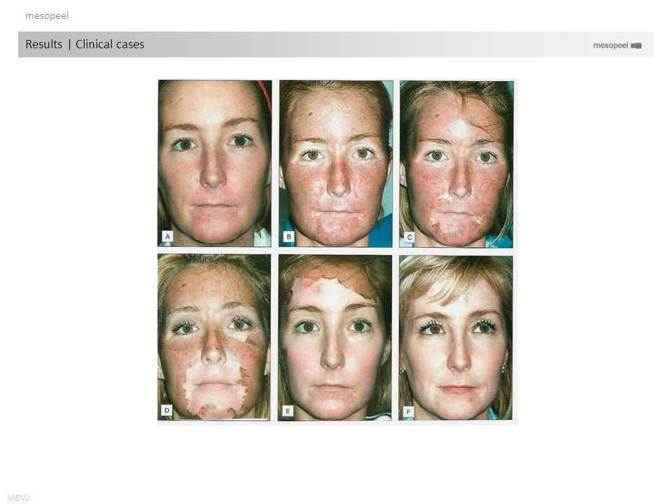 MENU mesopeel Results   Clinical cases