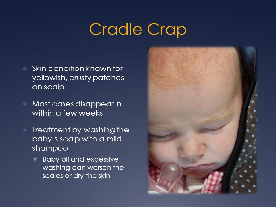 Cradle Crap  Skin condition known for yellowish, crusty patches on scalp  Most cases disappear in within a few weeks  Treatment by washing the baby