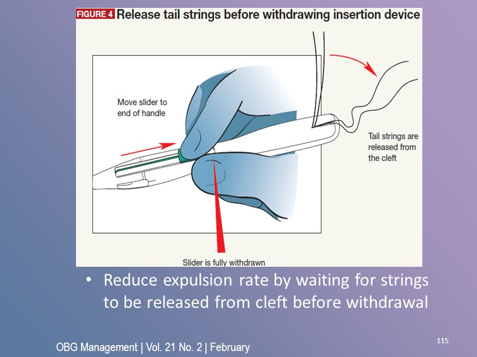 115 Reduce expulsion rate by waiting for strings to be released from cleft before withdrawal OBG Management | Vol. 21 No. 2 | February 2009