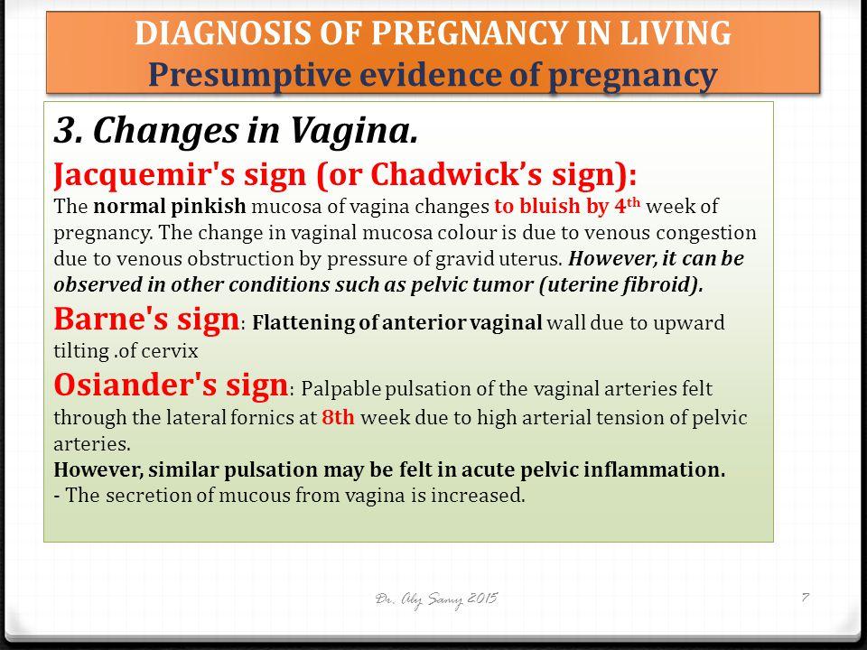 DIAGNOSIS OF PREGNANCY IN LIVING Presumptive evidence of pregnancy Dr.