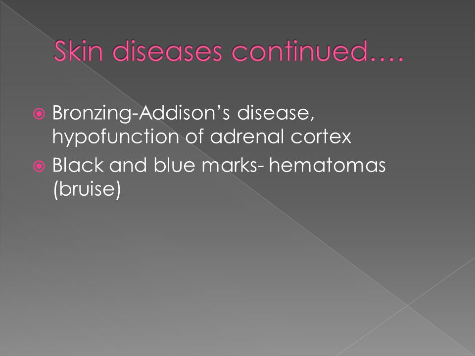  Bronzing-Addison's disease, hypofunction of adrenal cortex  Black and blue marks- hematomas (bruise)