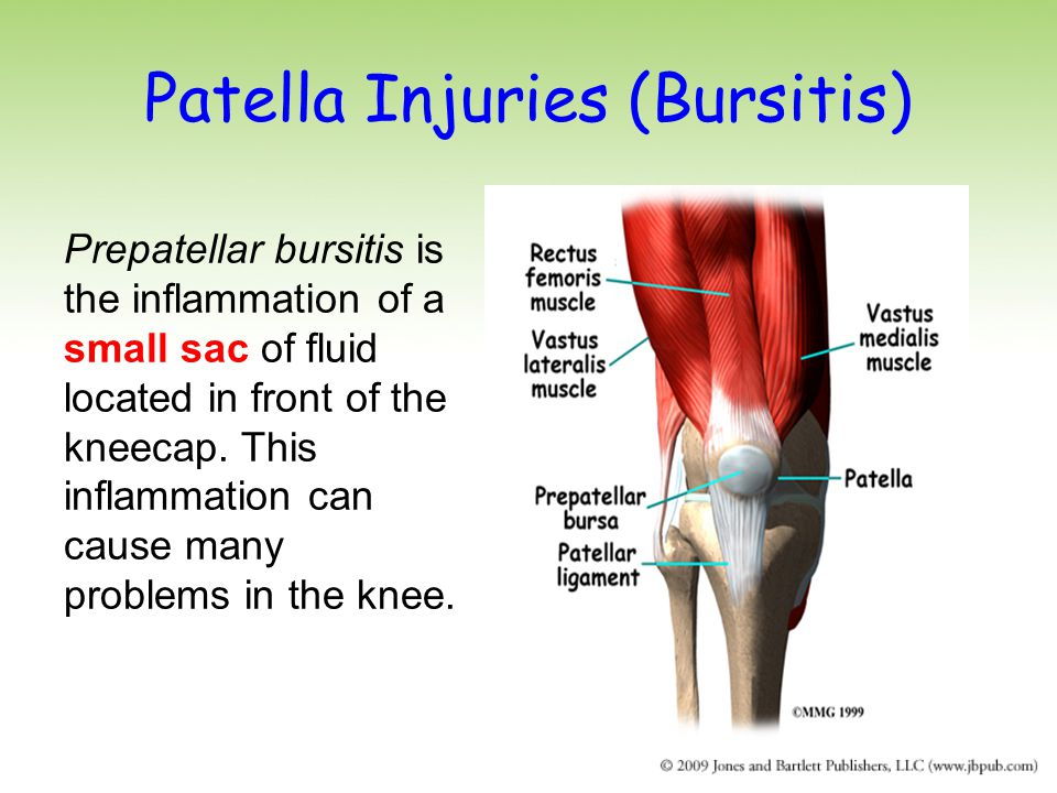 Patella Injuries (Bursitis) Prepatellar bursitis is the inflammation of a small sac of fluid located in front of the kneecap.