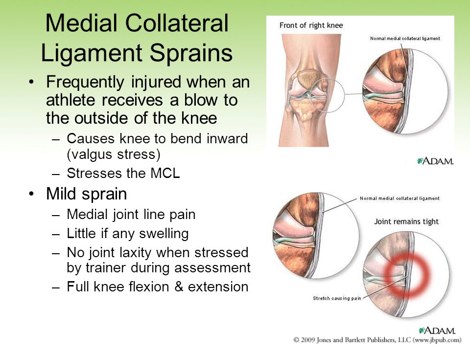 Medial Collateral Ligament Sprains Frequently injured when an athlete receives a blow to the outside of the knee –Causes knee to bend inward (valgus stress) –Stresses the MCL Mild sprain –Medial joint line pain –Little if any swelling –No joint laxity when stressed by trainer during assessment –Full knee flexion & extension