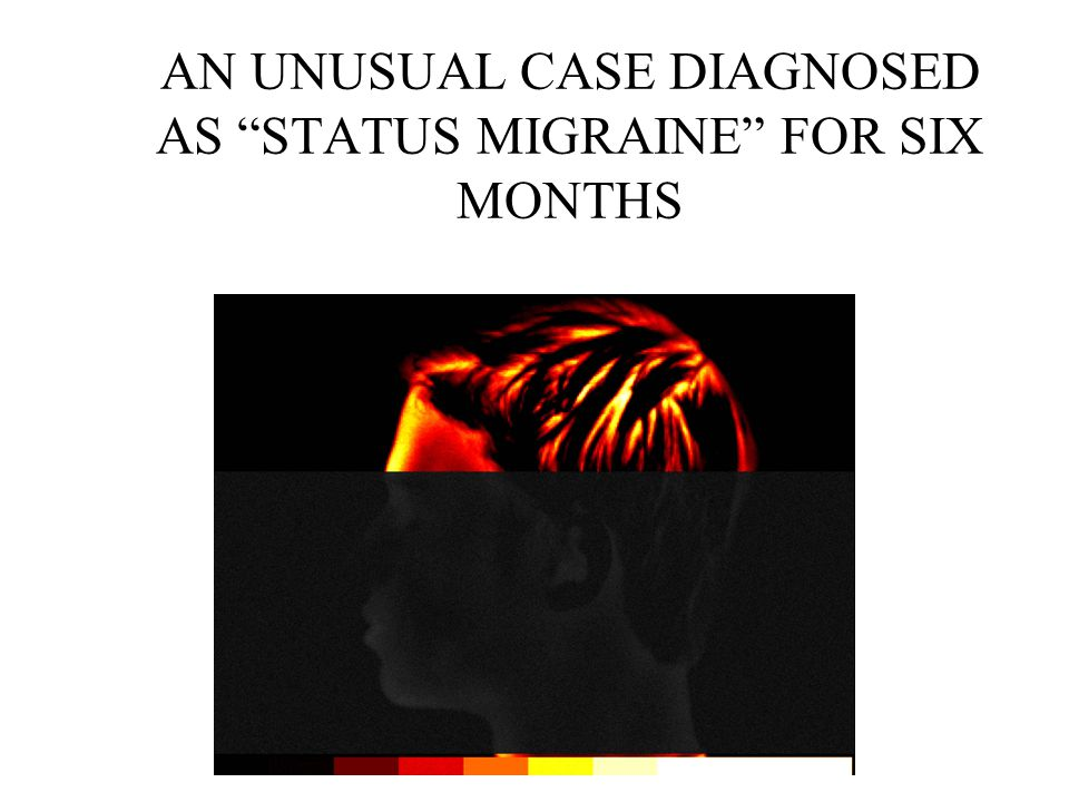 AN UNUSUAL CASE DIAGNOSED AS STATUS MIGRAINE FOR SIX MONTHS