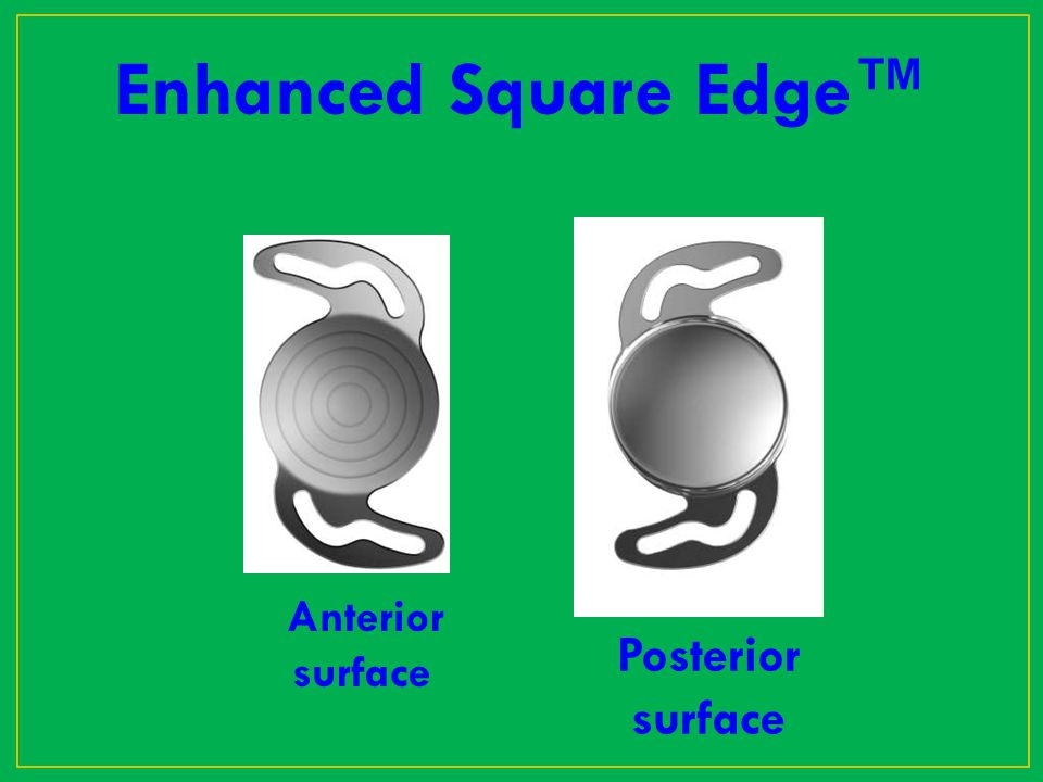Enhanced Square Edge™ Posterior surface Anterior surface
