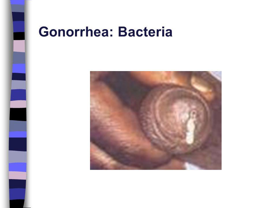Gonorrhea: Bacteria