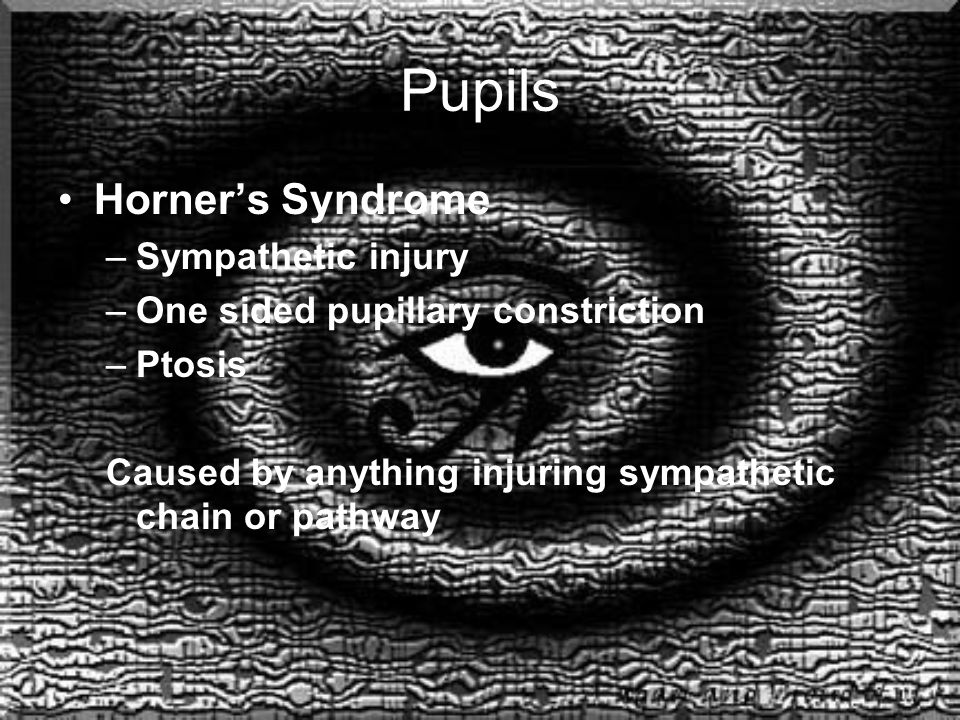 Pupils Horner's Syndrome –Sympathetic injury –One sided pupillary constriction –Ptosis Caused by anything injuring sympathetic chain or pathway