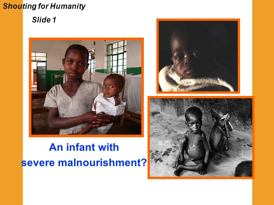 Shouting for Humanity Slide 1 An infant with severe malnourishment?