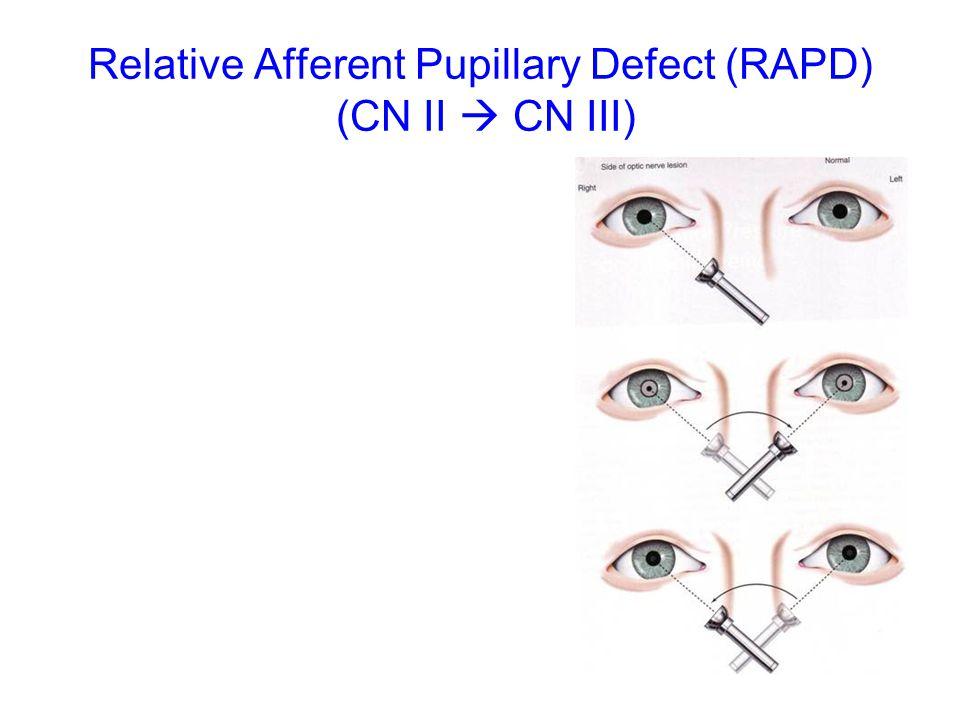Relative Afferent Pupillary Defect (RAPD) (CN II  CN III)