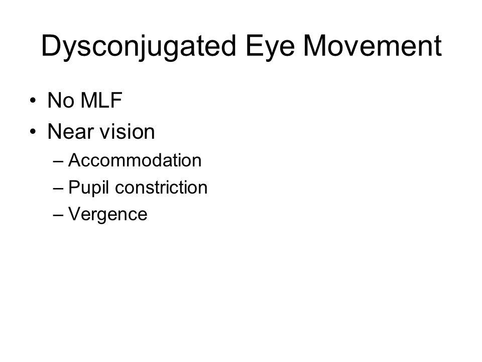 Dysconjugated Eye Movement No MLF Near vision –Accommodation –Pupil constriction –Vergence
