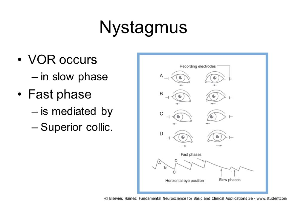 Nystagmus VOR occurs –in slow phase Fast phase –is mediated by –Superior collic.