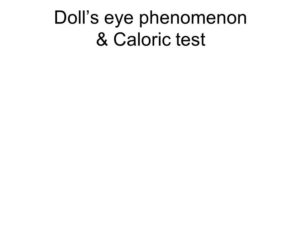Doll's eye phenomenon & Caloric test