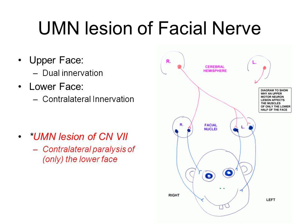 UMN lesion of Facial Nerve Upper Face: –Dual innervation Lower Face: –Contralateral Innervation *UMN lesion of CN VII –Contralateral paralysis of (onl