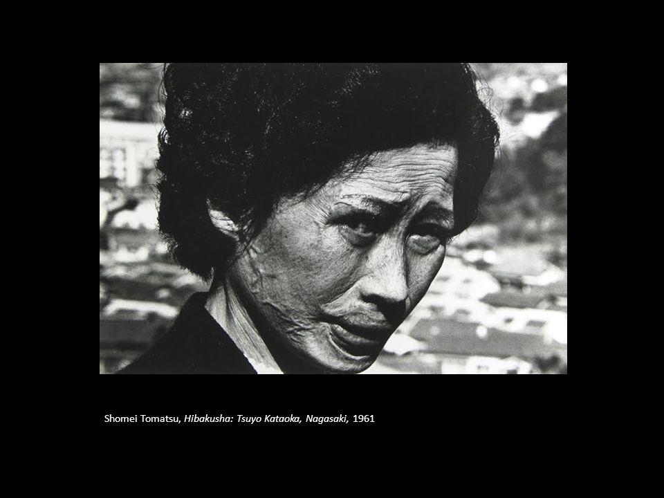 Shomei Tomatsu, Hibakusha: Tsuyo Kataoka, Nagasaki, 1961