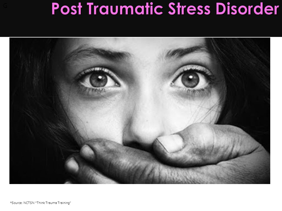 G Post Traumatic Stress Disorder Post Traumatic Stress Disorder Age of the youth TraumaHistory Trauma at the hand of caretakers Secondary adversities *Source: NCTSN Think Trauma Training
