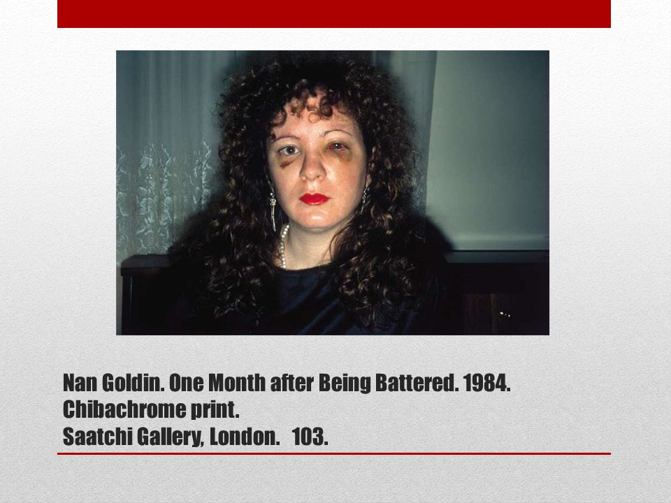Nan Goldin. One Month after Being Battered. 1984. Chibachrome print. Saatchi Gallery, London. 103.