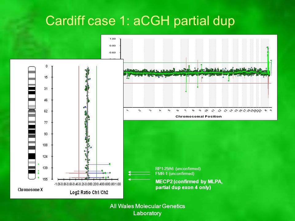 All Wales Molecular Genetics Laboratory Cardiff case 1: aCGH partial dup FMR-1 (unconfirmed) RP1-29A6 (unconfirmed) MECP2 (confirmed by MLPA, partial dup exon 4 only)