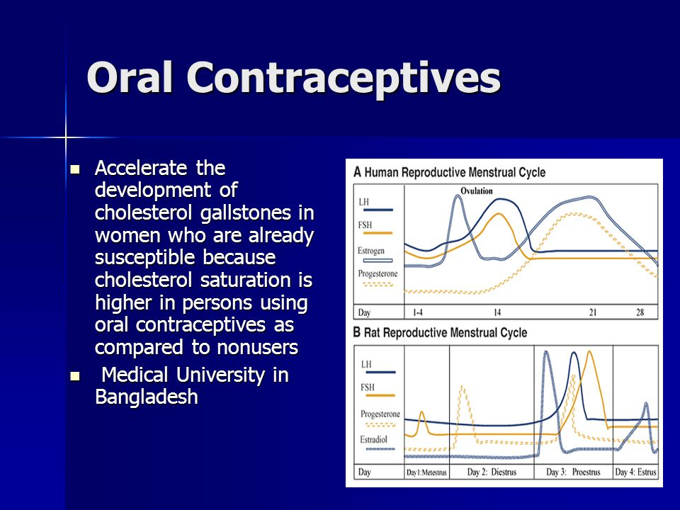 Oral Contraceptives Accelerate the development of cholesterol gallstones in women who are already susceptible because cholesterol saturation is higher in persons using oral contraceptives as compared to nonusers Accelerate the development of cholesterol gallstones in women who are already susceptible because cholesterol saturation is higher in persons using oral contraceptives as compared to nonusers Medical University in Bangladesh Medical University in Bangladesh