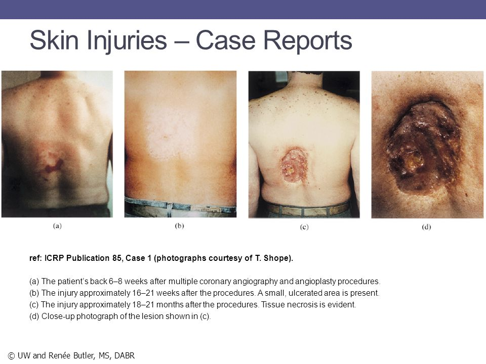 Skin Injuries – Case Reports ref: ICRP Publication 85, Case 1 (photographs courtesy of T. Shope). (a) The patient's back 6–8 weeks after multiple coro