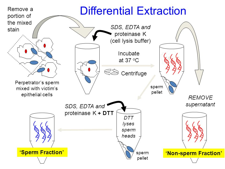 Perpetrator's sperm mixed with victim's epithelial cells Centrifuge REMOVE supernatant SDS, EDTA and proteinase K (cell lysis buffer) Remove a portion