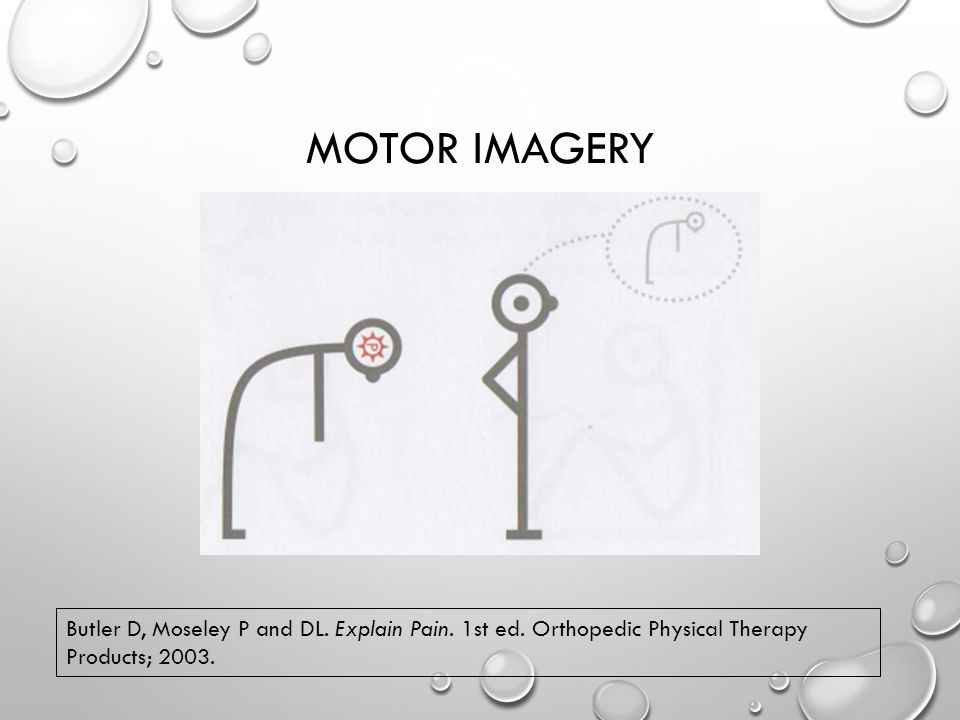 MOTOR IMAGERY Butler D, Moseley P and DL. Explain Pain.