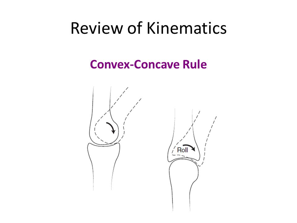 Review of Kinematics Convex-Concave Rule