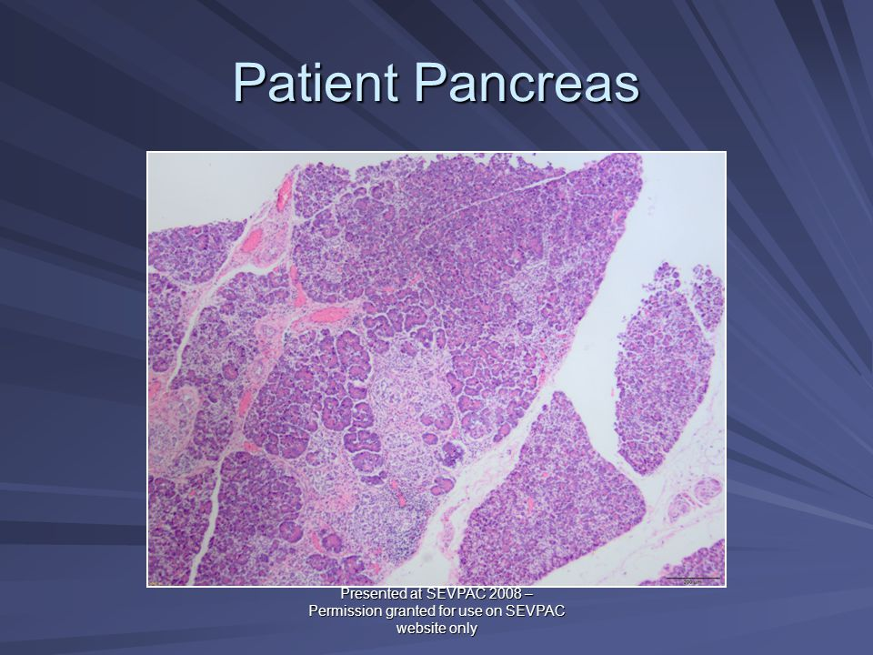 Patient Pancreas Presented at SEVPAC 2008 – Permission granted for use on SEVPAC website only