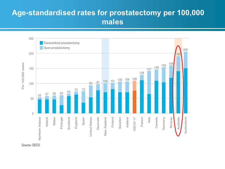 Age-standardised rates for prostatectomy per 100,000 males